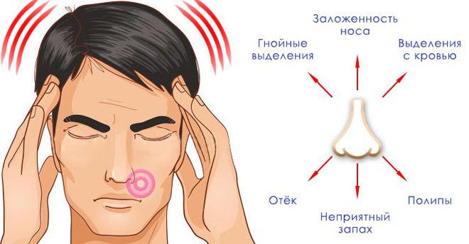 причины запаха из носа