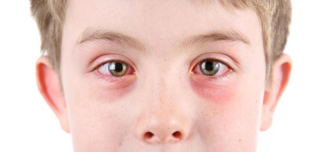у ребенка слезятся глаза и течет из носа