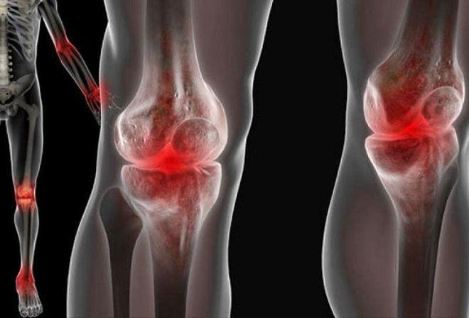 Рентген больного сустава