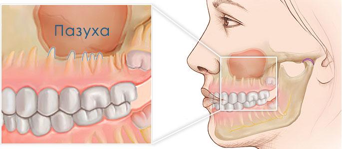 гайморовы пазухи и зубы