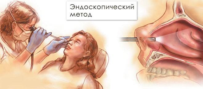 Эндоскопический метод