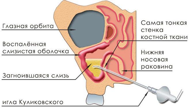 Игловой прокол