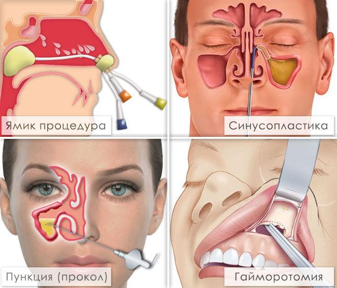 Как прогреть нос в домашних условиях детям 33