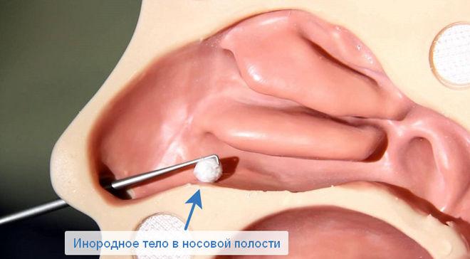 В носу инородное тело