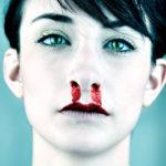 Потеки крови