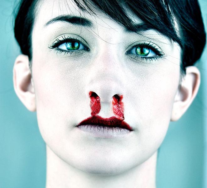 Почему течет иногда кровь из носа 183