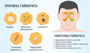 Как вылечить хронический гайморит симптомы и лечение