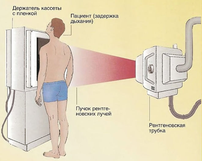 Флюорография