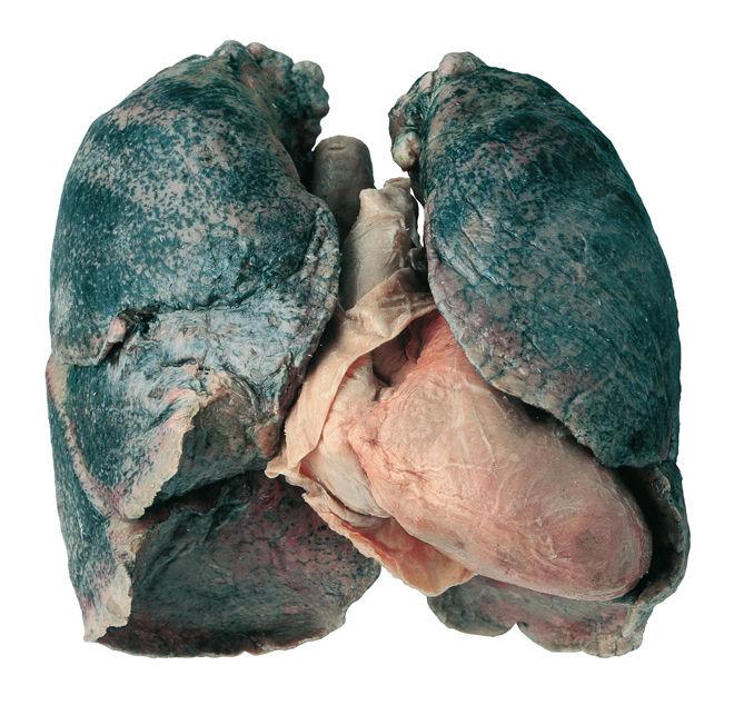 Лёгкие при силикозе