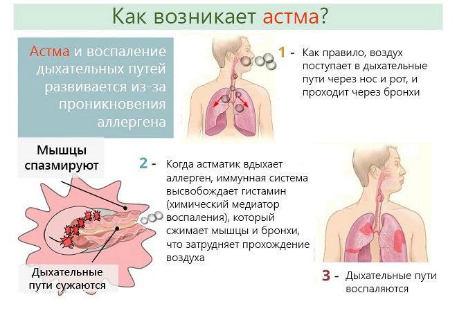 Подробнее об астме