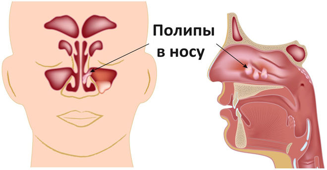 Полипы в носовой полости