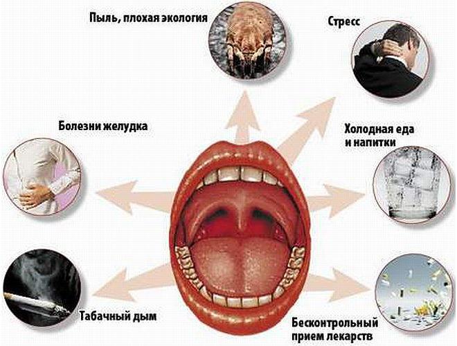 От чего может болеть горло