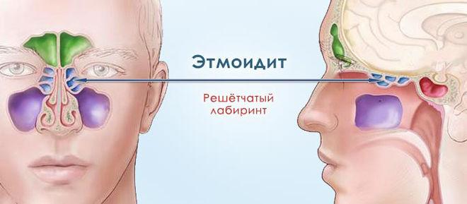 Область боли при этмоидите