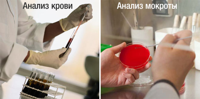 Мокрота и кровь на анализ