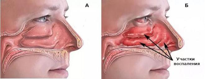 Носовая полость в разрезе при синусите