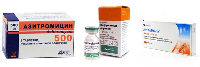 Цефтриаксон азитромицин аугментин