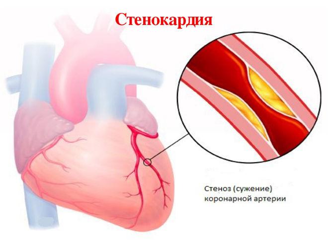 Проблемы сердца