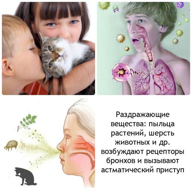 Виды аллергии