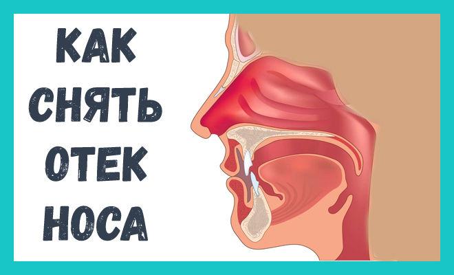 Как снять отек носа у беременных 91
