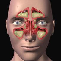 Лечение гнойного гайморита: симптомы, признаки, чем опасен