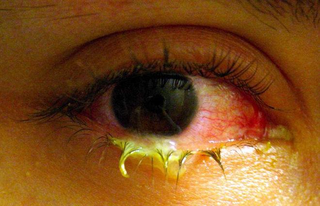 Глаза гноятся