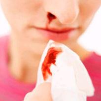 Насморк с кровью у взрослого: причины кровавых соплей