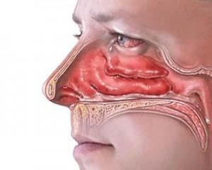 Как выглядит нос изнутри