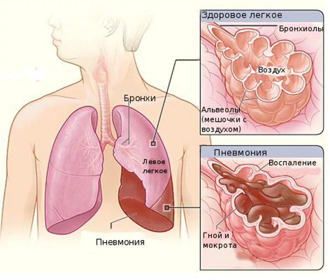 Как опознать пневмонию