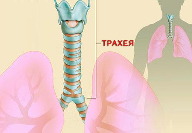Трахеит и сухой кашель