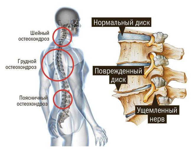 Схема остеохондроза