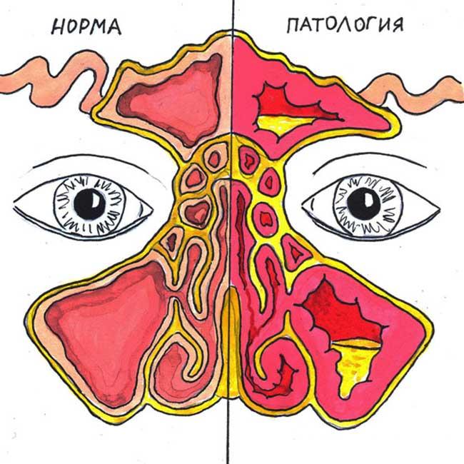 гайморит и здоровый нос