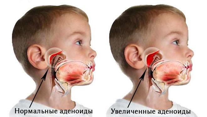 Симптомы воспаленных аденоидов