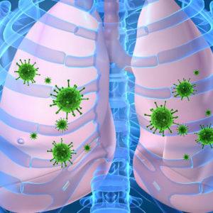 Бронхит — это вирусное или бактериальное заболевание?